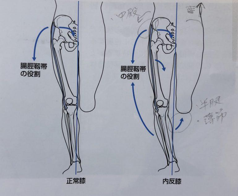 腸脛靭帯炎 (ランニング障害)